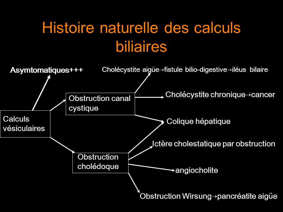 Histoire naturelle des calculs biliaires