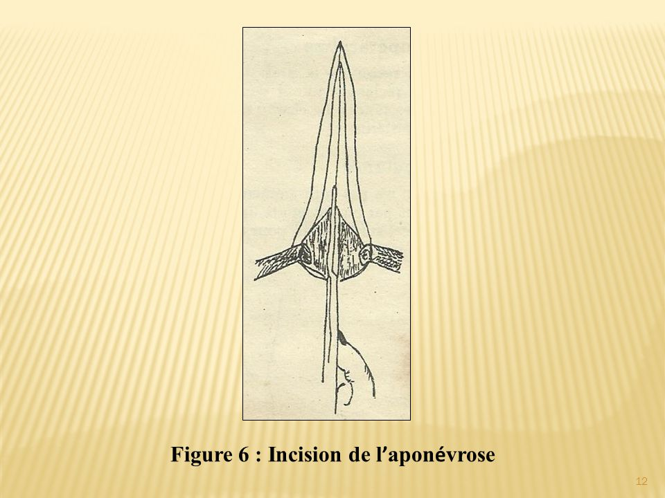 Figure 6 : Incision de l'aponévrose