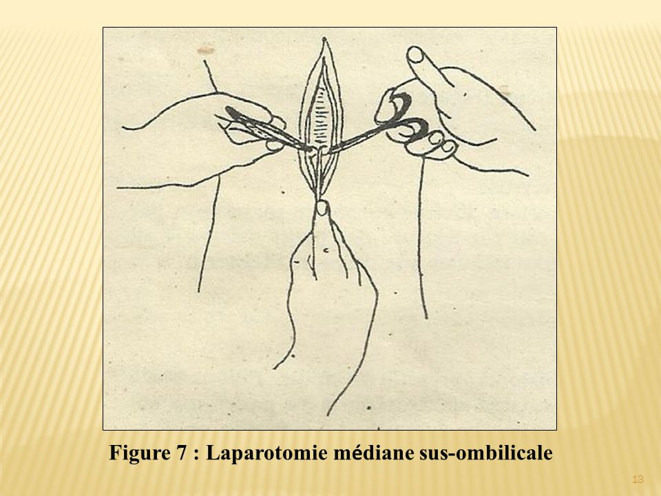 Figure 7 : Laparotomie médiane sus-ombilicale