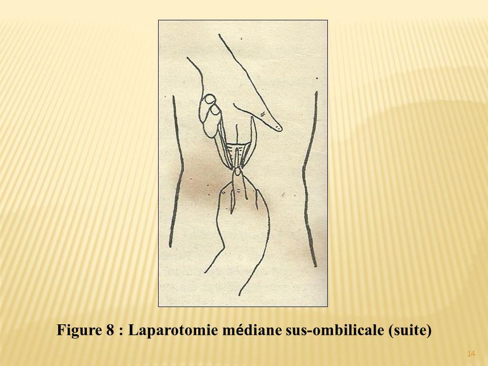 Figure 8 : Laparotomie médiane sus-ombilicale (suite)