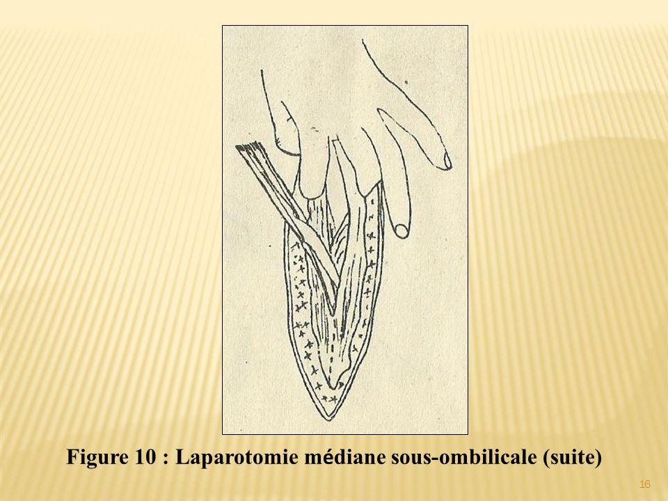 Figure 10 : Laparotomie médiane sous-ombilicale (suite)
