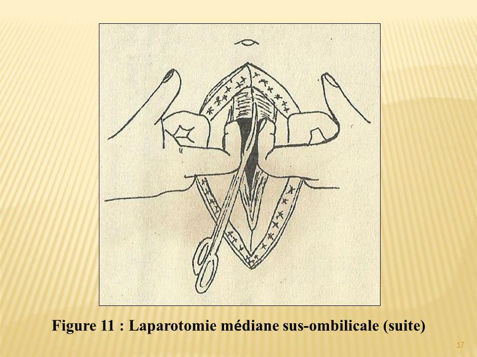 Figure 11 : Laparotomie médiane sus-ombilicale (suite)