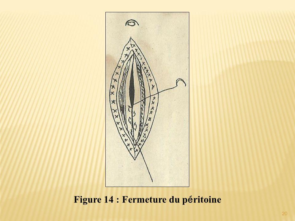 Figure 14 : Fermeture du péritoine