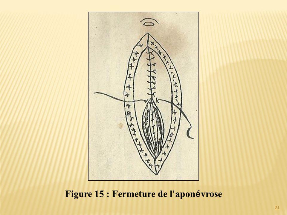 Figure 15 : Fermeture de l'aponévrose