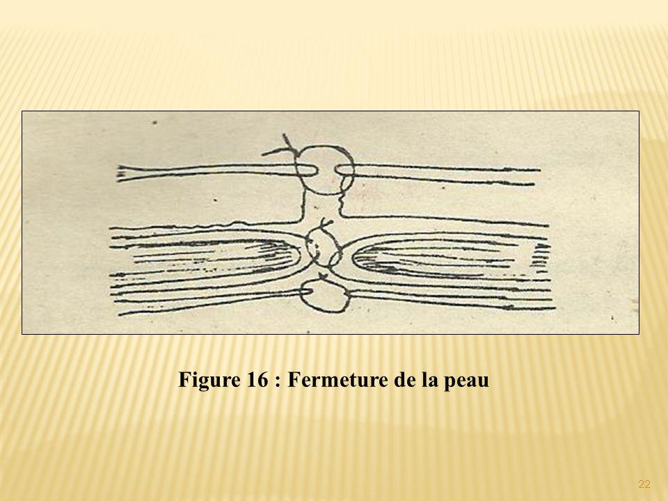 Figure 16 : Fermeture de la peau