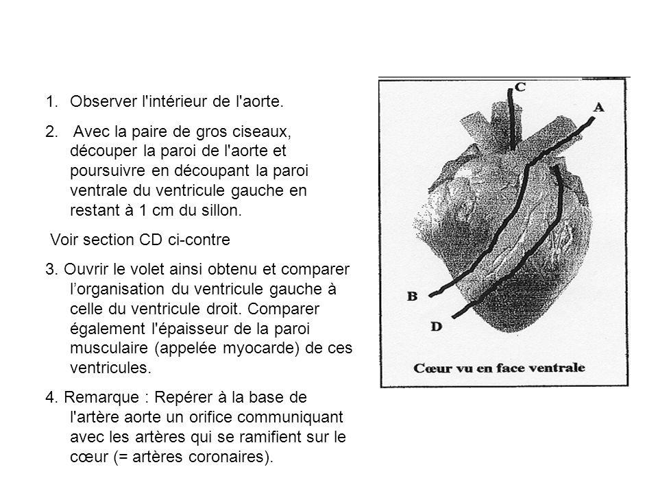 Observer l intérieur de l aorte.