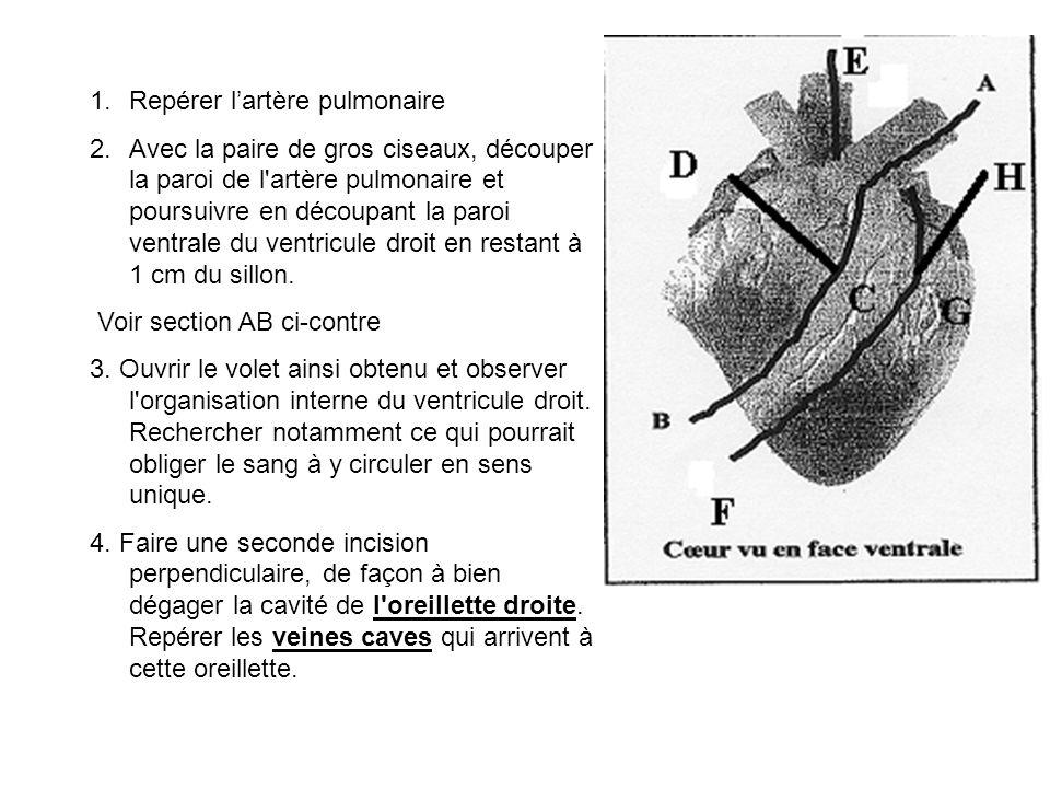 Repérer l'artère pulmonaire