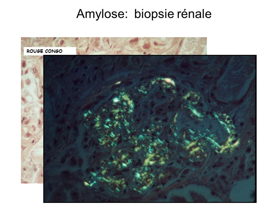 Amylose: biopsie rénale
