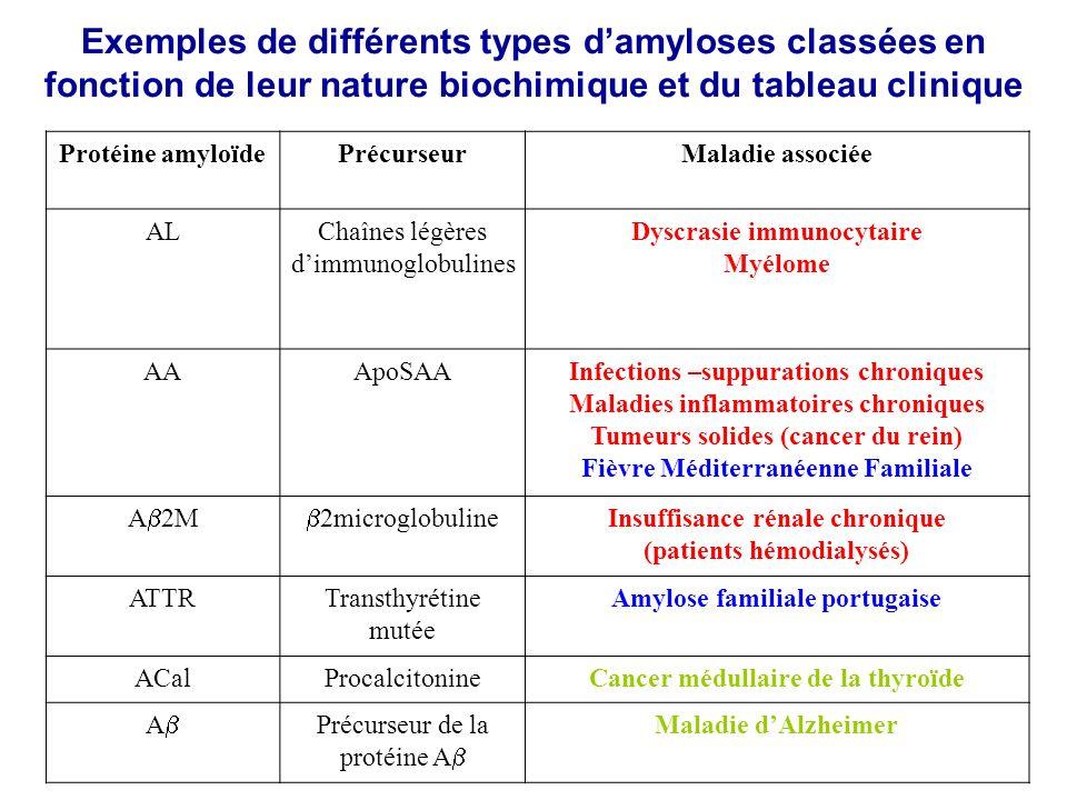 Exemples de différents types d'amyloses classées en fonction de leur nature biochimique et du tableau clinique
