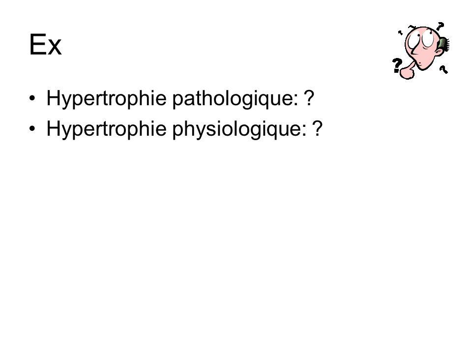 Ex Hypertrophie pathologique: Hypertrophie physiologique: