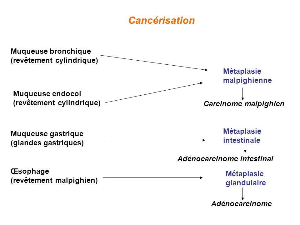 Adénocarcinome intestinal