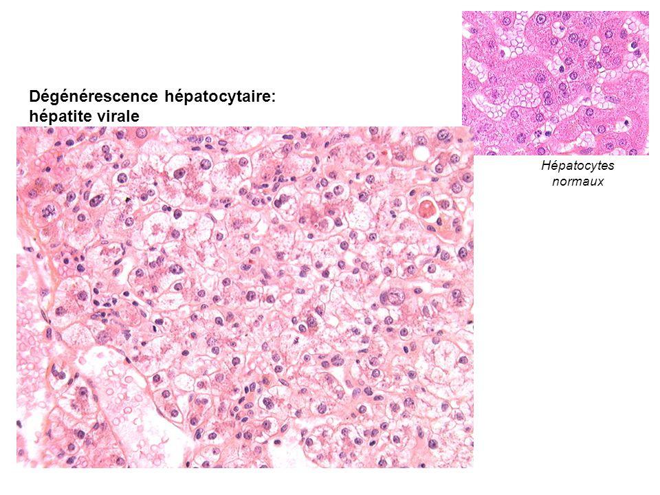 Dégénérescence hépatocytaire: hépatite virale