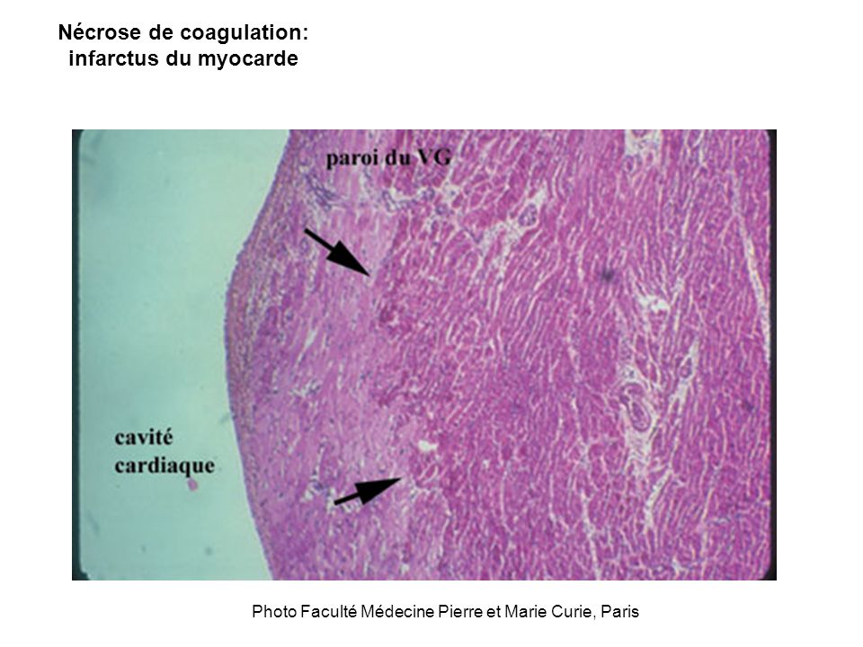 Nécrose de coagulation: infarctus du myocarde