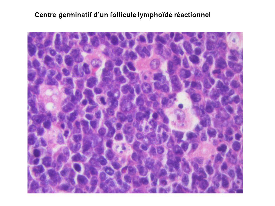 Centre germinatif d'un follicule lymphoïde réactionnel