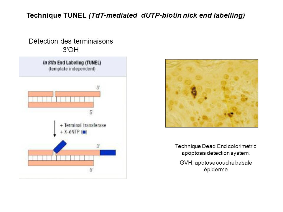Technique TUNEL (TdT-mediated dUTP-biotin nick end labelling)