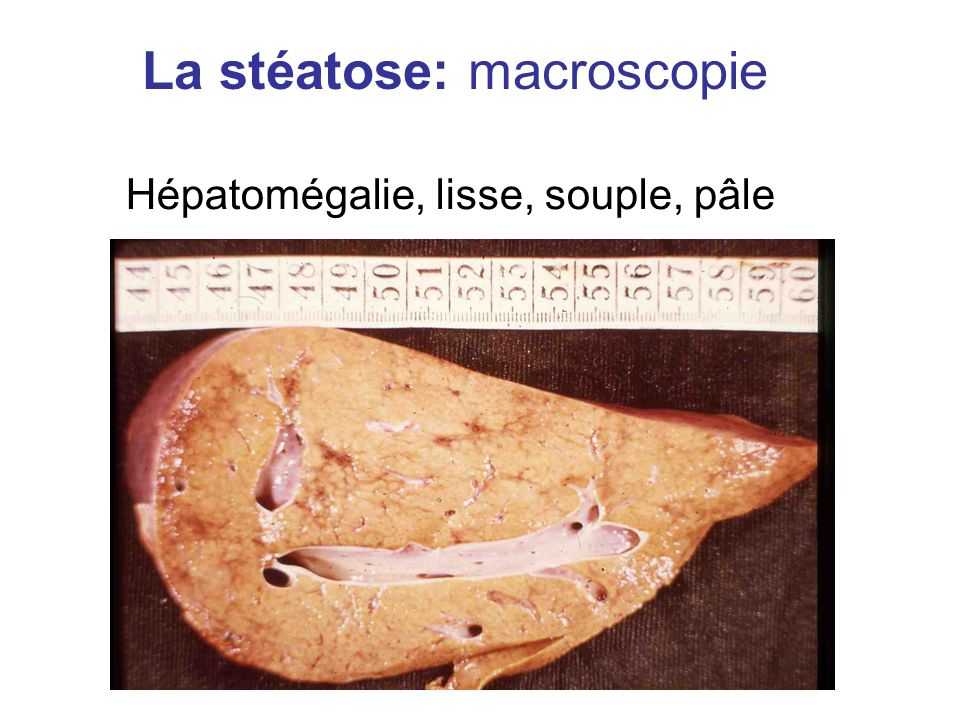 La stéatose: macroscopie