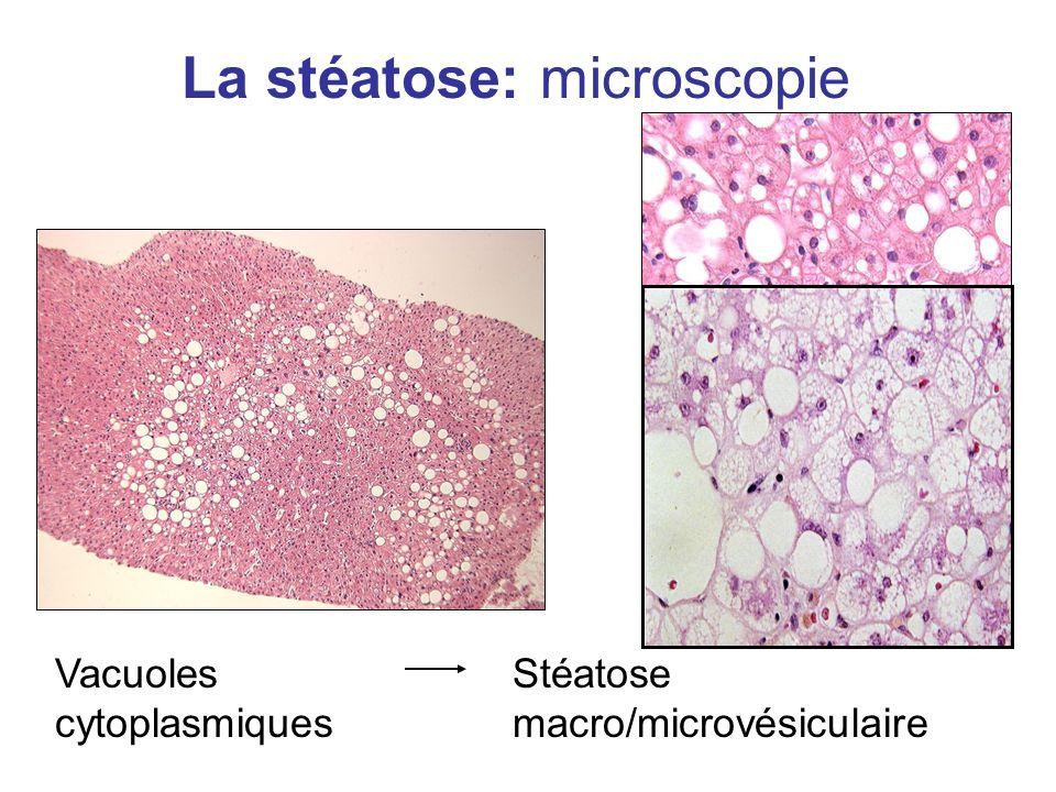 La stéatose: microscopie