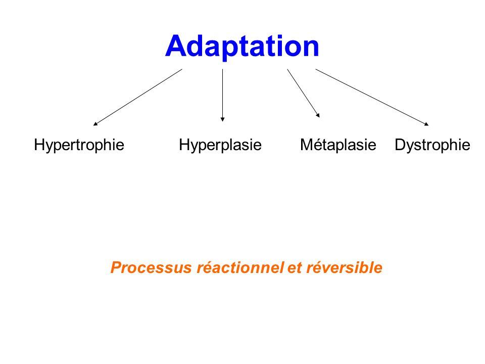 Adaptation Hypertrophie Hyperplasie Métaplasie Dystrophie