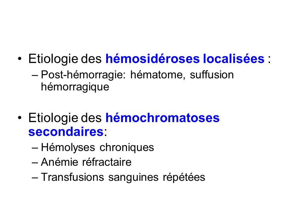 Etiologie des hémosidéroses localisées :