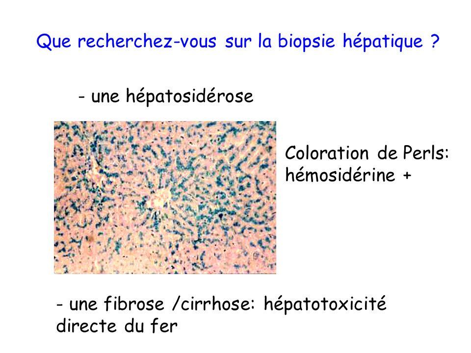 Que recherchez-vous sur la biopsie hépatique