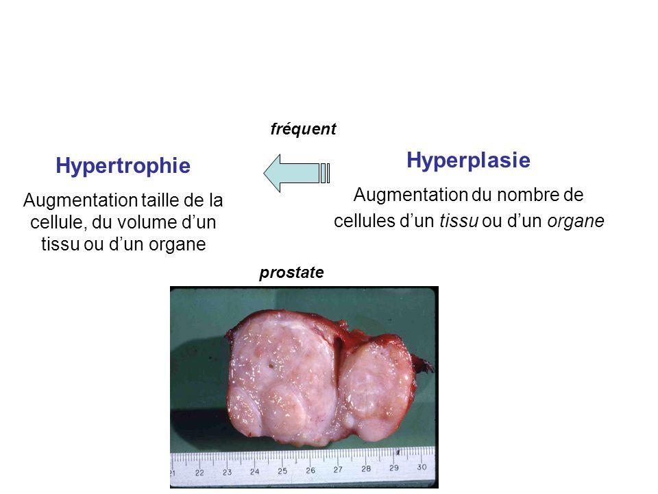 Hyperplasie Hypertrophie