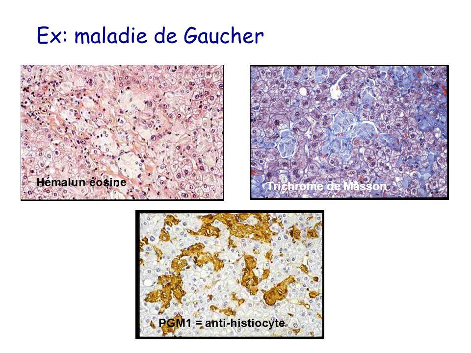 Ex: maladie de Gaucher Hémalun éosine Trichrome de Masson