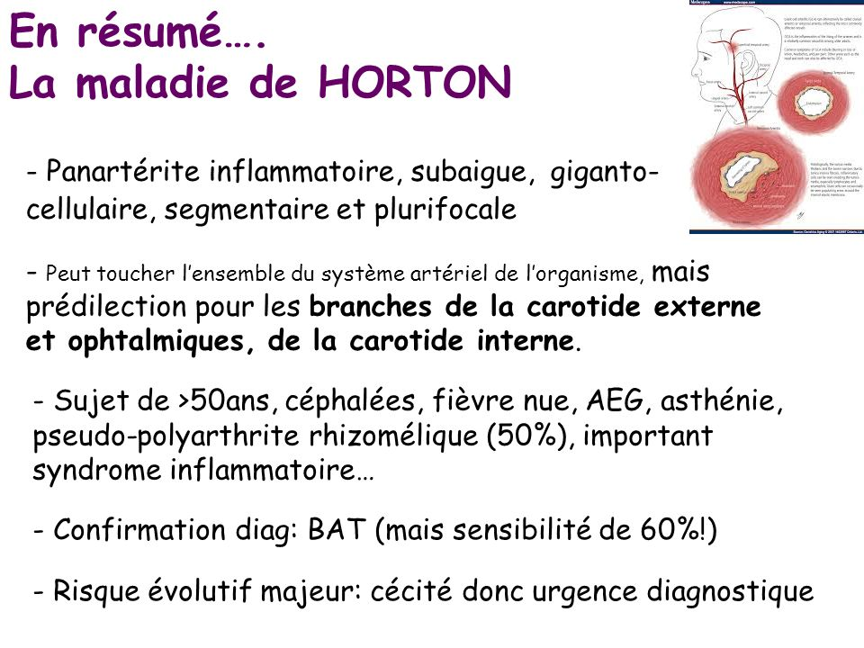 Atherome vascularites ppt video online t l charger - Peut on couper des branches du voisin ...