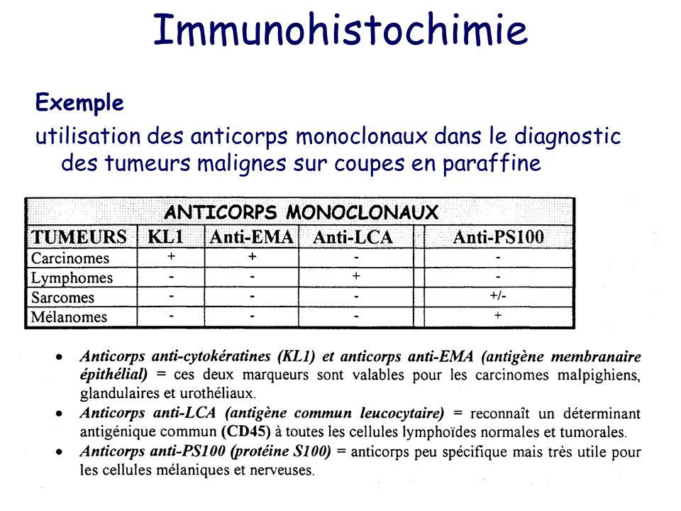 Immunohistochimie Exemple