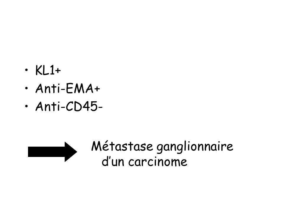 KL1+ Anti-EMA+ Anti-CD45- Métastase ganglionnaire d'un carcinome