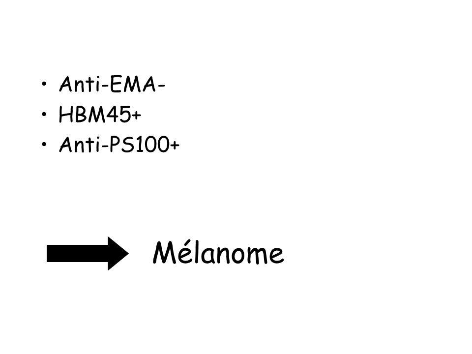 Anti-EMA- HBM45+ Anti-PS100+ Mélanome