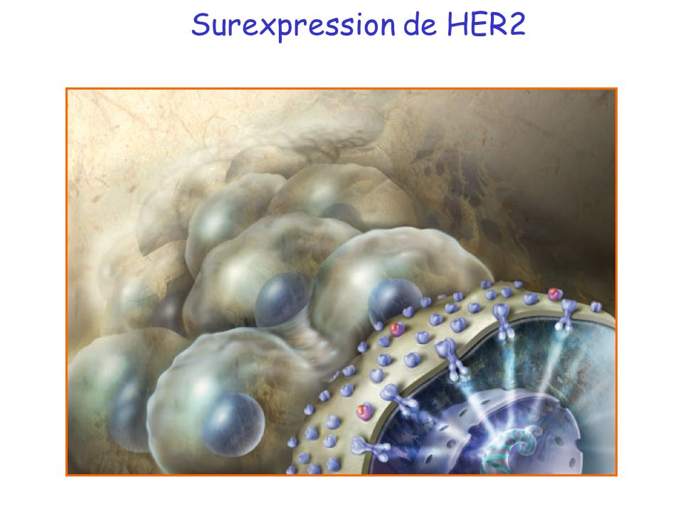 Surexpression de HER2