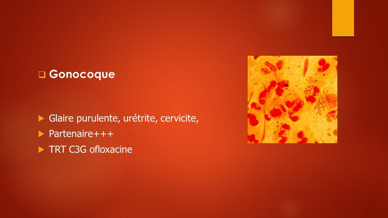 Gonocoque Glaire purulente, urétrite, cervicite, Partenaire+++