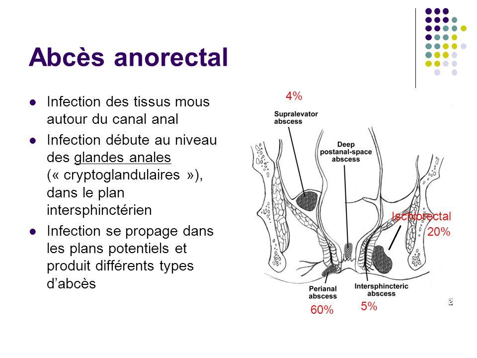 Abcès anorectal Infection des tissus mous autour du canal anal