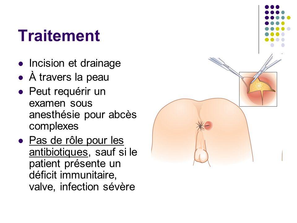 Traitement Incision et drainage À travers la peau