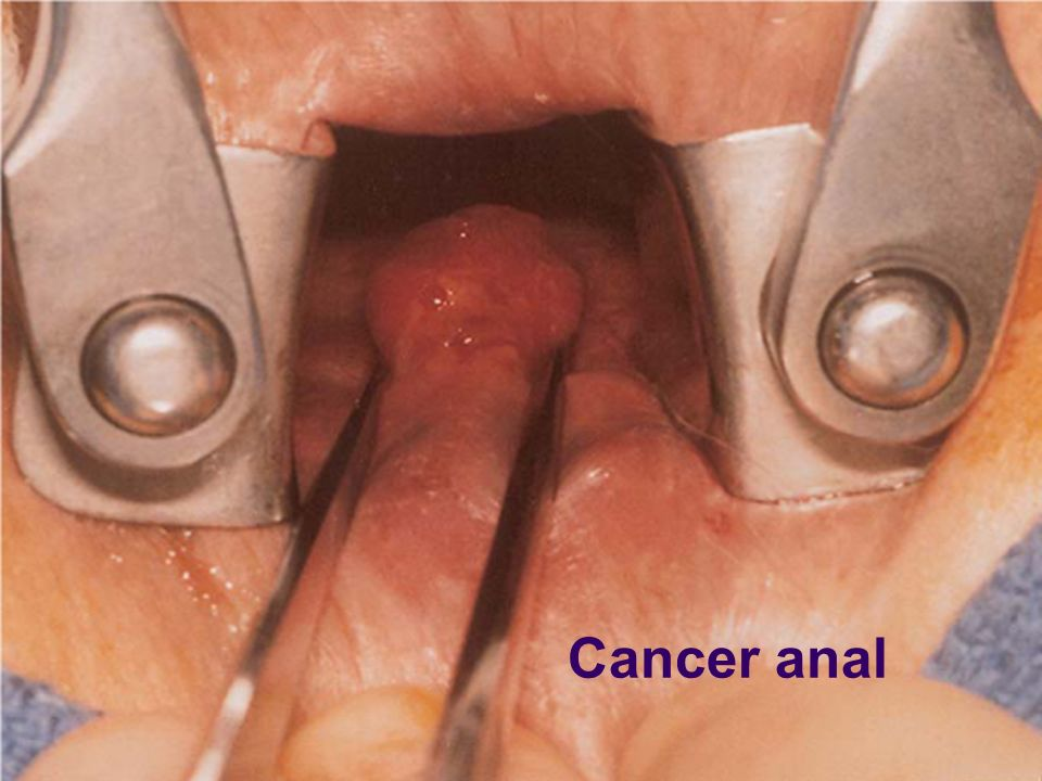 Cancer anal
