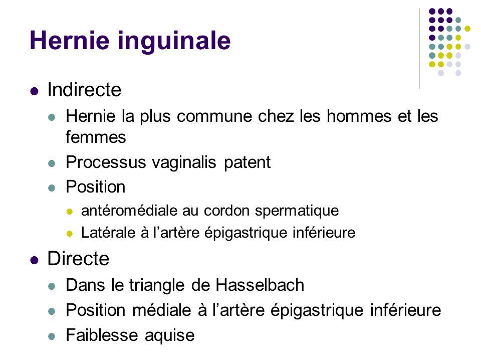 Hernie inguinale Indirecte Directe