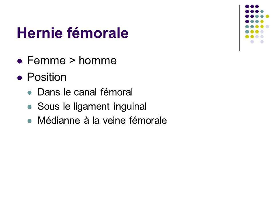 Hernie fémorale Femme > homme Position Dans le canal fémoral