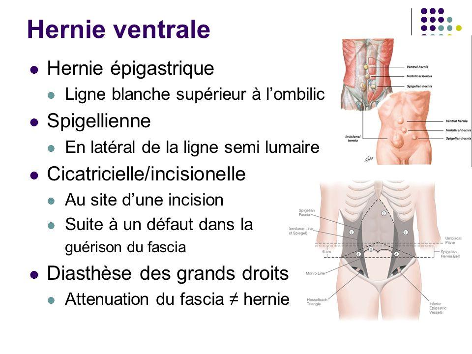 Hernie ventrale Hernie épigastrique Spigellienne