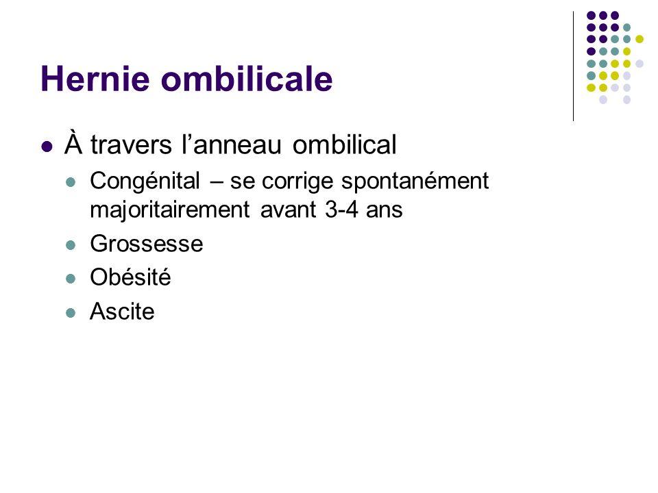 Hernie ombilicale À travers l'anneau ombilical