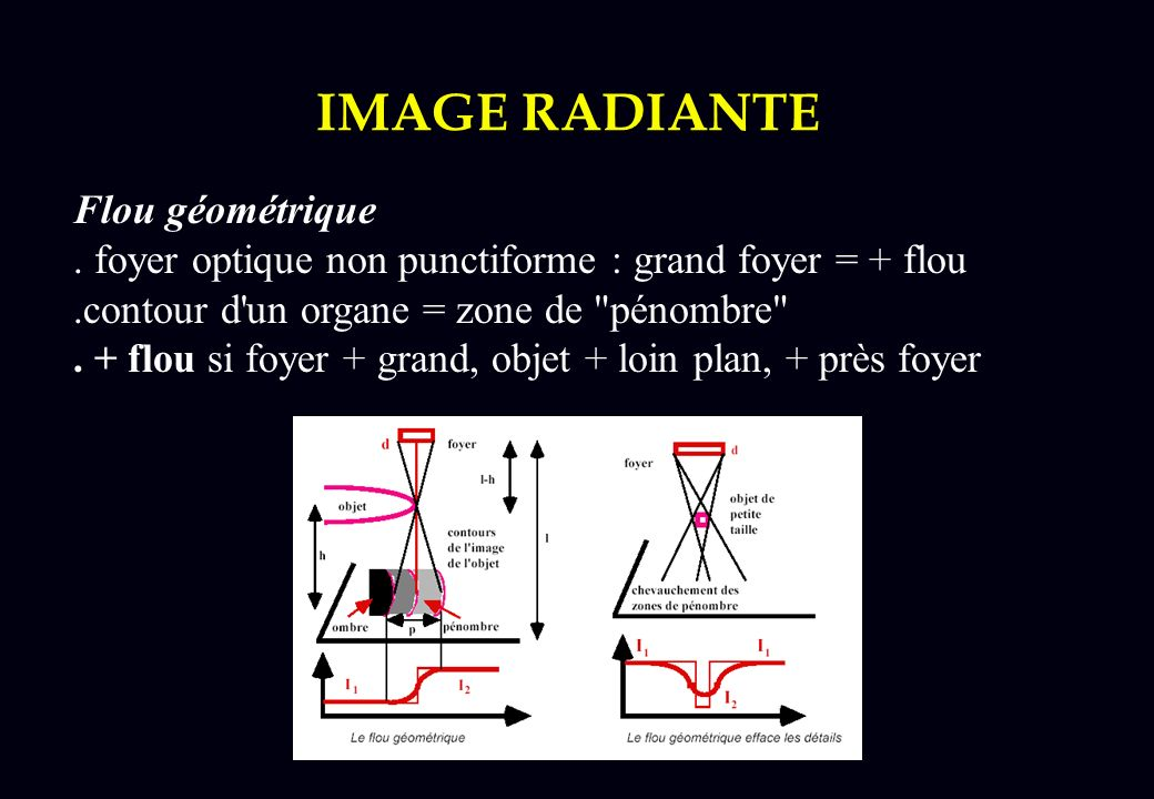 Grand Foyer Radiologie : Imagerie radiologique radiologie hopital tenon ppt