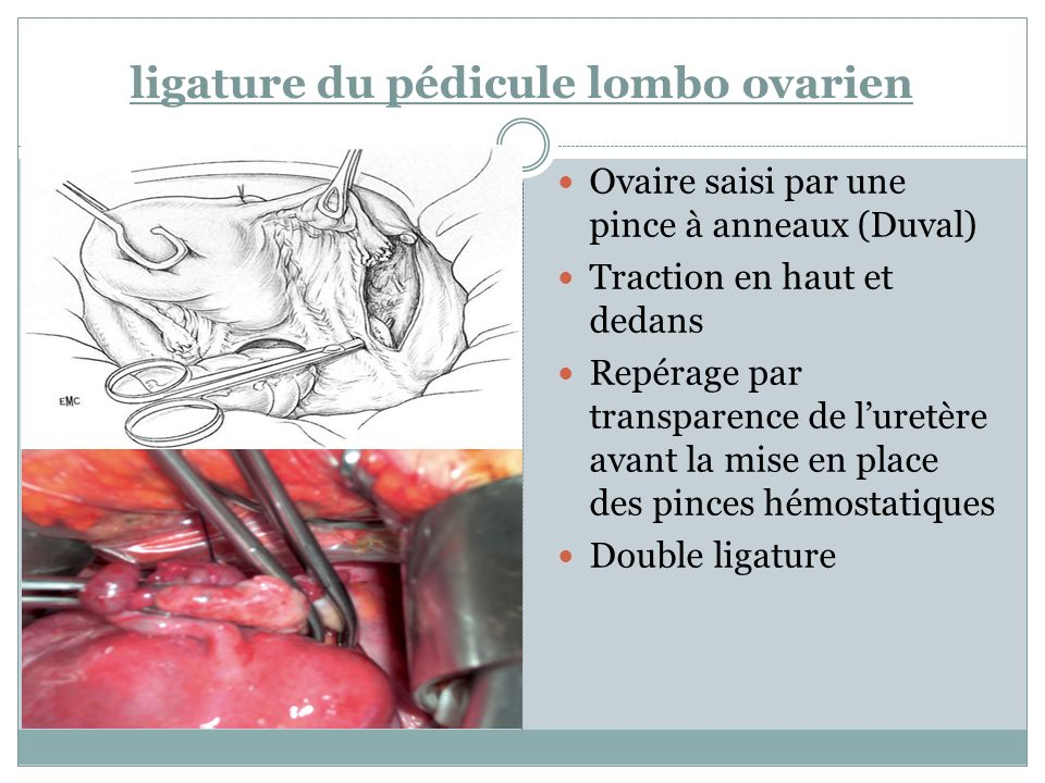 Großartig Ovarien Produzieren Ideen - Anatomie Von Menschlichen ...