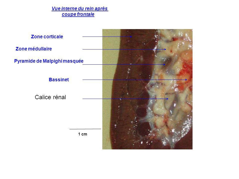 Calice rénal Vue interne du rein après coupe frontale Zone corticale