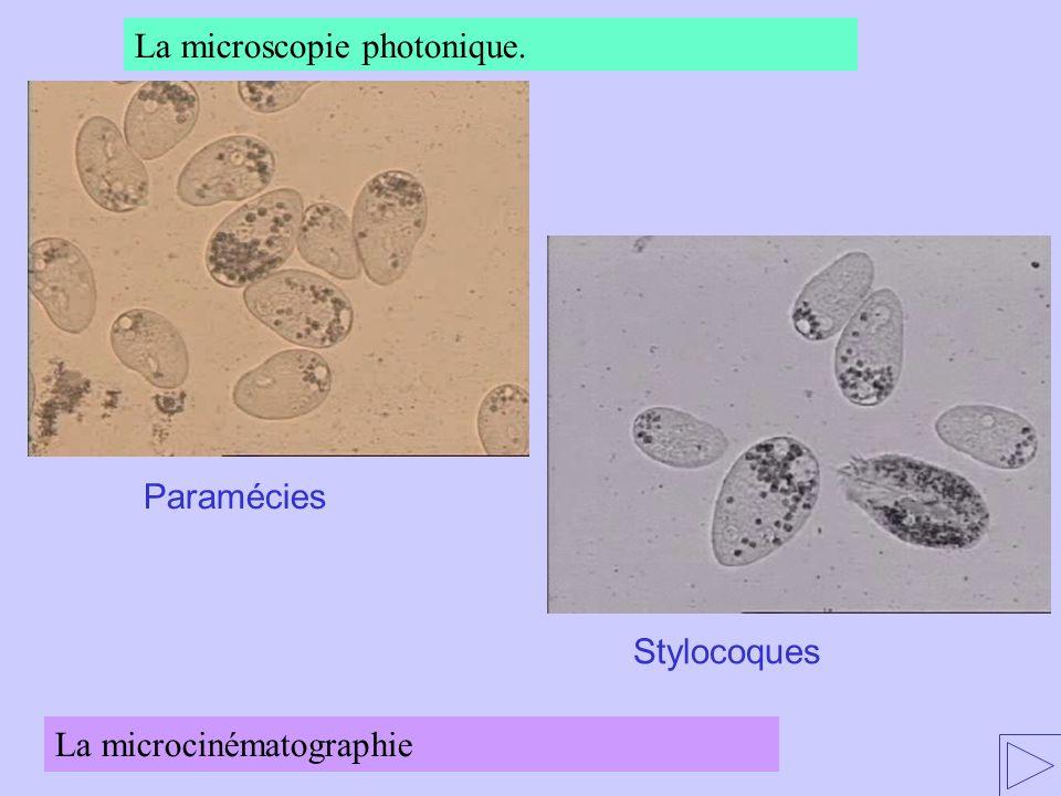 La microscopie photonique.