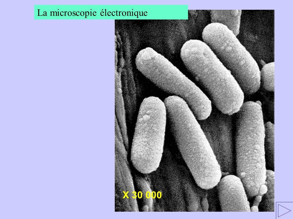 La microscopie électronique