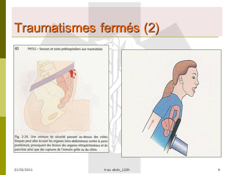 Traumatismes fermés (2)