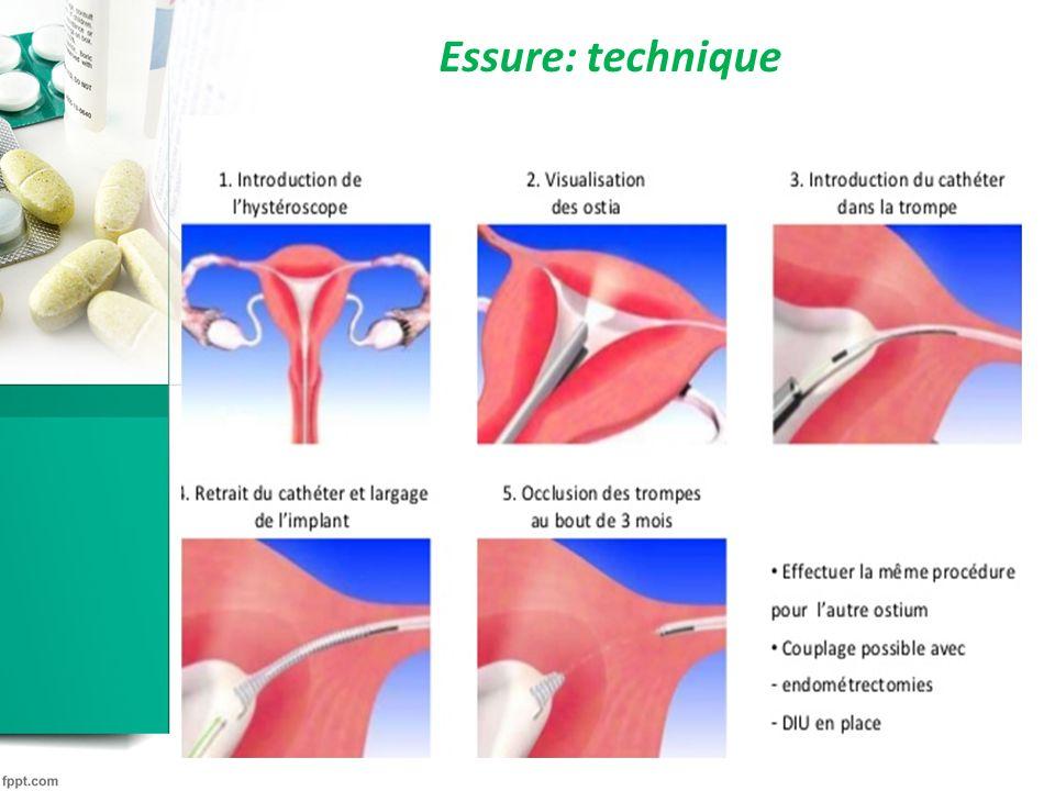 Ligature des trompes