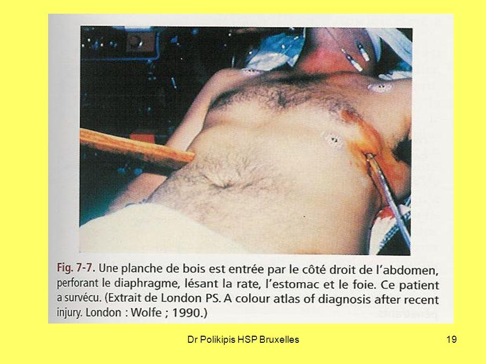Dr Polikipis HSP Bruxelles