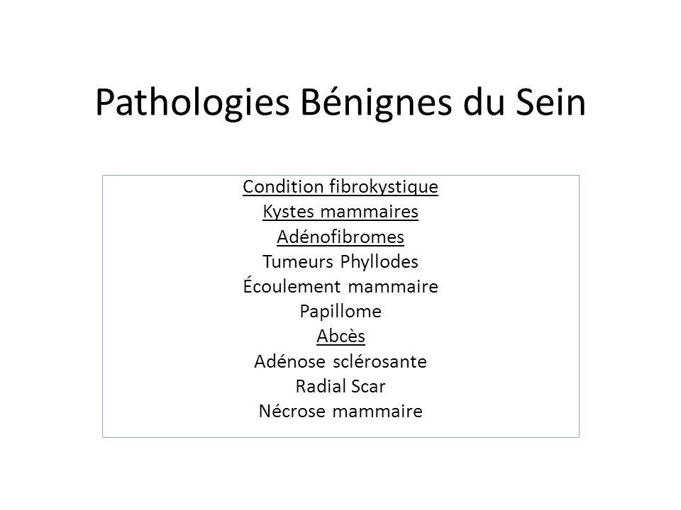 Maladies et conditions maladie du sein fibrokystique