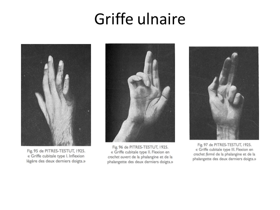 Griffe ulnaire
