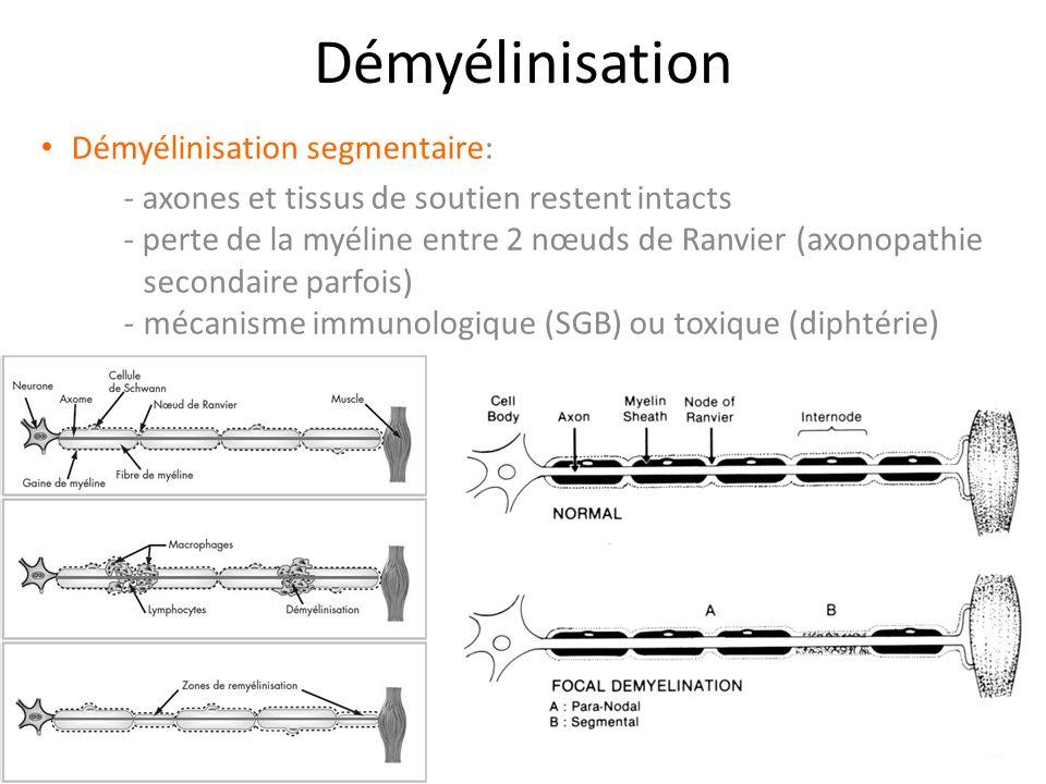 Démyélinisation Démyélinisation segmentaire: